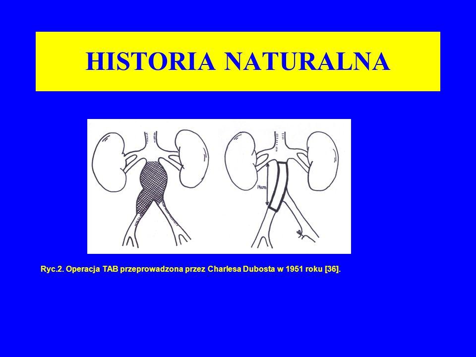 HISTORIA NATURALNA Ryc.2. Operacja TAB przeprowadzona przez Charlesa Dubosta w 1951 roku [36].
